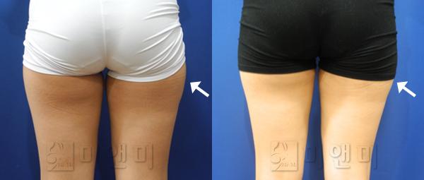 허벅지 라인개선